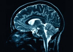 This is a magnetic resonance image slice of the human brain, <a href=